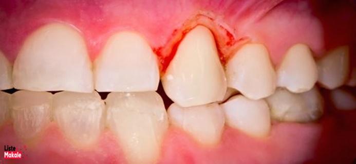 Rüyada Diş Dökülmesi Görmek Ne Anlama Gelir?