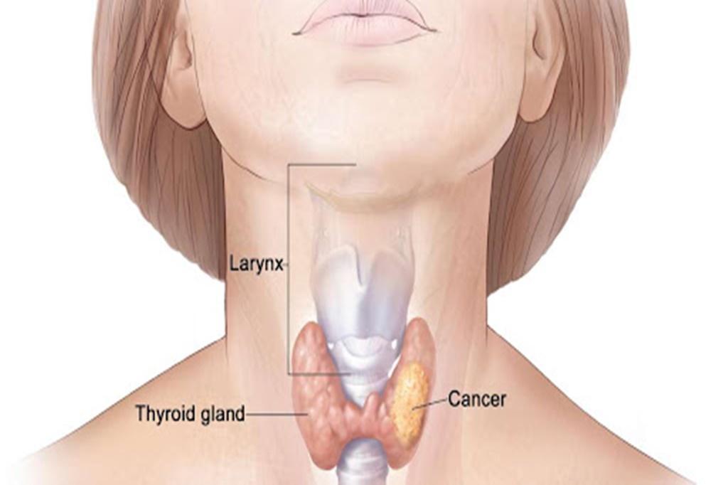 Tiroid Kanseri Nedenleri ve Tedavisi