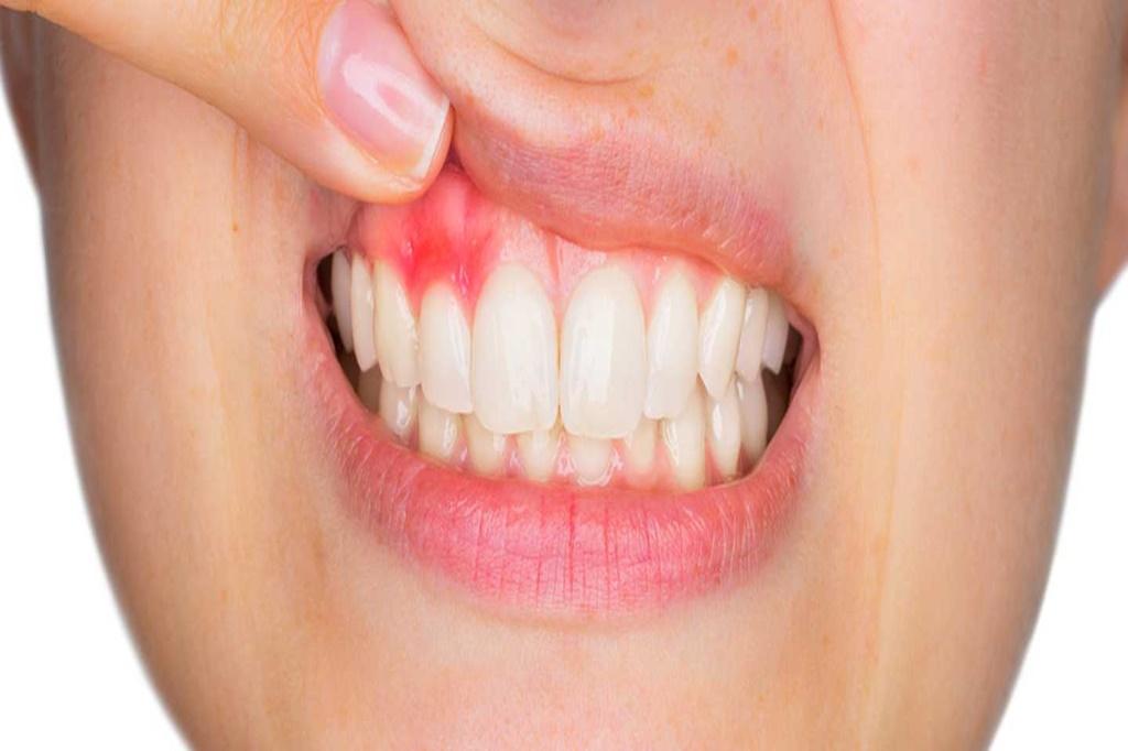 Diş Eti Şişmesi Nasıl Geçer?